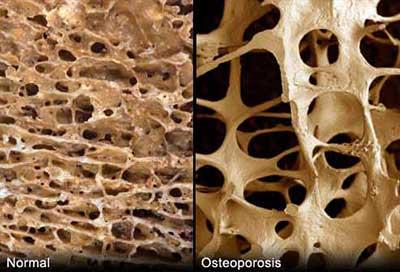 Какво е остеопороза - 1 част от остеопороза.com