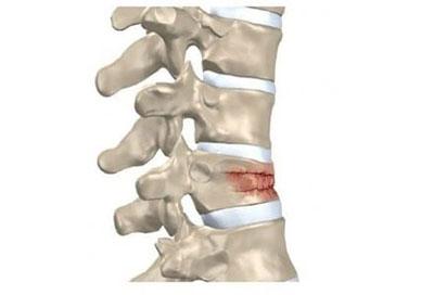 Преди и след остеопоротични фрактури от Остеопороза.com