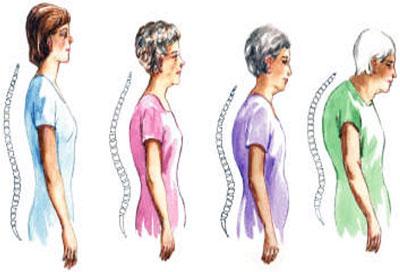 съвети за остеопроза